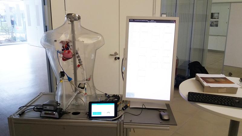 El proyecto Medolutiom ha desarrollado tecnología de chatbots para la monitorización integral de corazones artificiales.